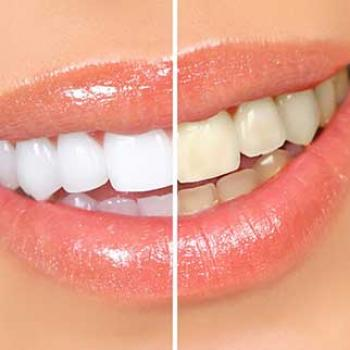 quanto custa clareamento dental